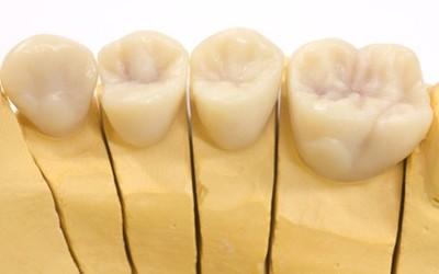 Wachsmodellation von Zahnkronen